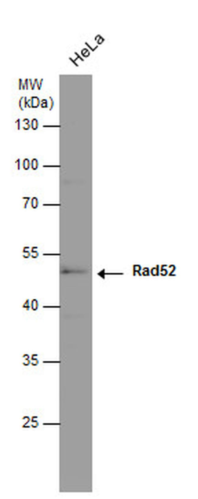 RAD52 Antibody (MA1-23334)