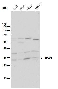 RAD1 Antibody (MA1-23350) in Western Blot