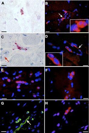 Tyrosine Hydroxylase Antibody (MA1-24654) in Immunofluorescence