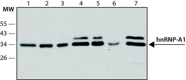 hnRNP A1 Antibody (MA1-26736) in Western Blot