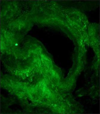 Collagen I Antibody (MA1-26771) in Immunofluorescence