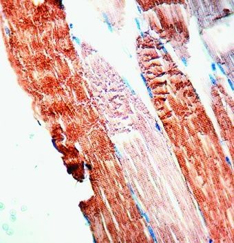 Sarcomeric alpha Actin Antibody (MA1-26928) in Immunohistochemistry