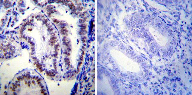 Progesterone Receptor Antibody (MA1-410)