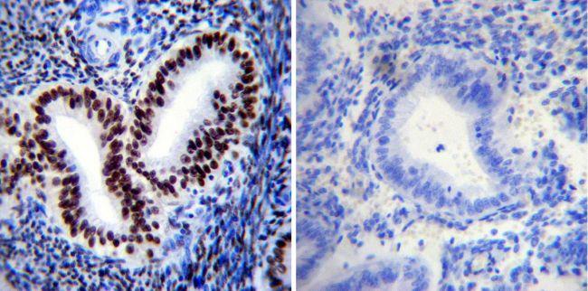 Phospho-Progesterone Receptor (Ser190) Antibody (MA1-413) in Immunohistochemistry