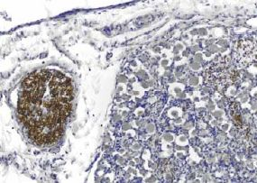PMP22 Antibody (MA1-46002)