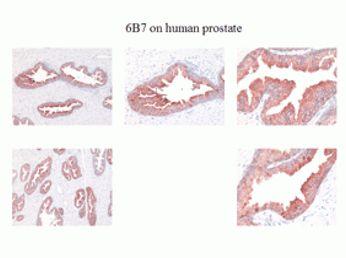 Kallikrein 2 Antibody (MA1-5809)