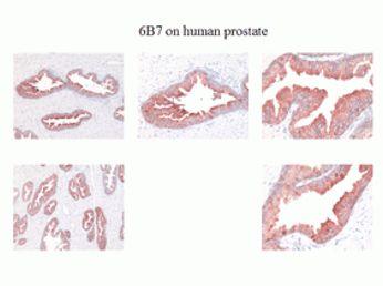 Kallikrein 2 Antibody (MA1-5810) in Immunohistochemistry (Paraffin)