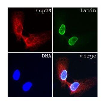 Lamin A/C Antibody (MA1-5820)