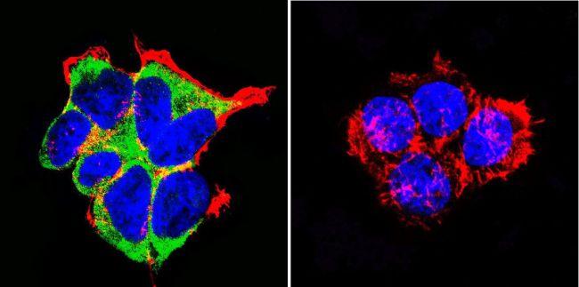 NR3C2 Antibody (MA1-620) in Immunofluorescence