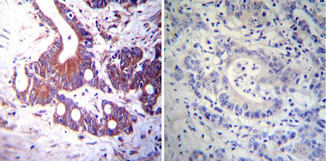 NR3C2 Antibody (MA1-620) in Immunohistochemistry