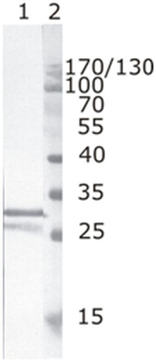 HIV1 nef Antibody (MA1-71501)