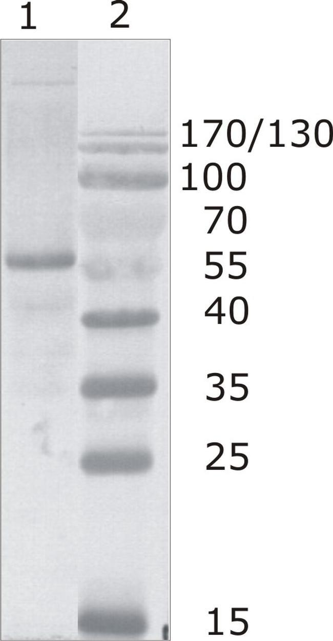HIV1 p24 Antibody (MA1-71517)