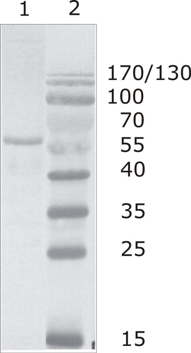 HIV1 p24 Antibody (MA1-71518)