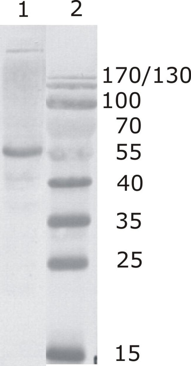 HIV1 p24 Antibody (MA1-71519) in Western Blot
