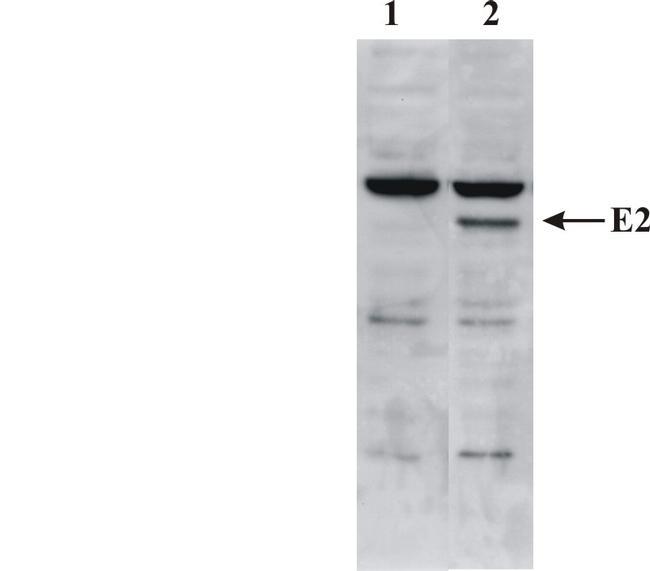 Bovine Papilloma Virus Type 1 E2 Antibody (MA1-71532) in Western Blot