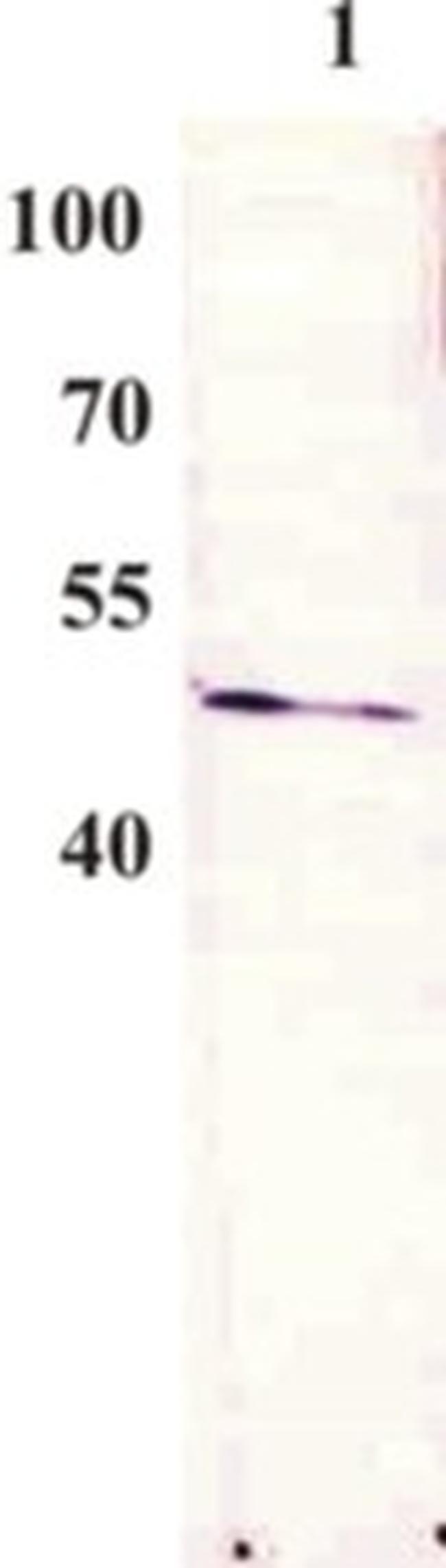 Bovine Papilloma Virus Type 1 E2 Antibody (MA1-71533) in Western Blot
