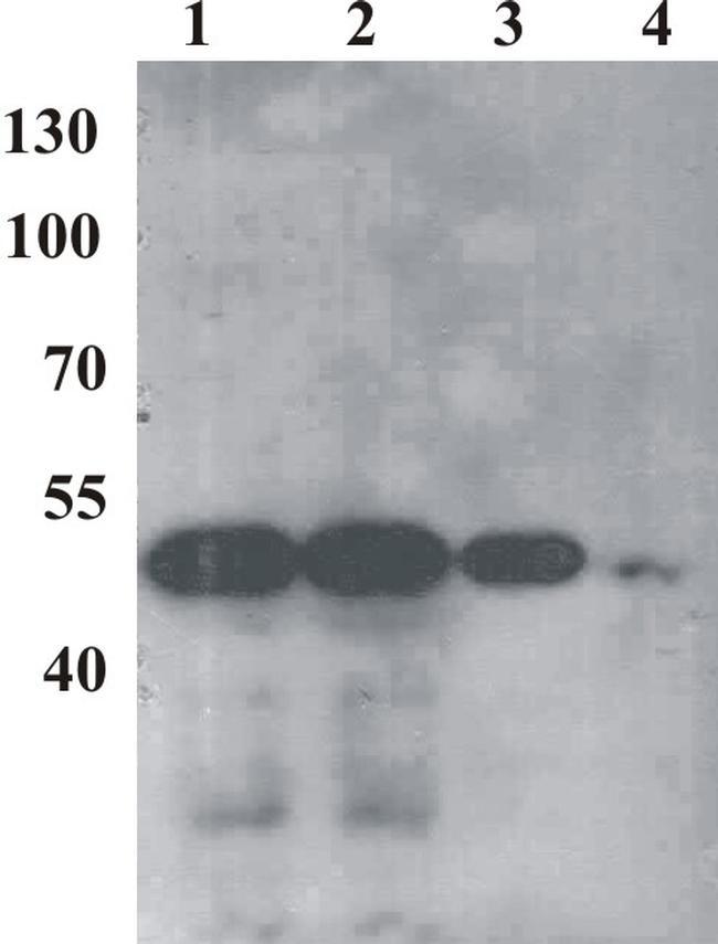 Bovine Papilloma Virus Type 1 E2 Antibody (MA1-71535) in Western Blot