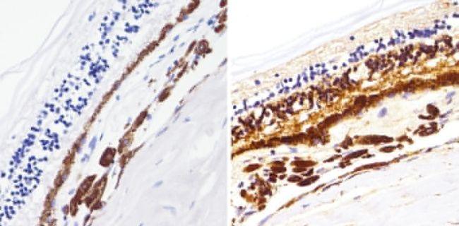Rhodopsin Antibody (MA1-722) in Immunohistochemistry (Paraffin)