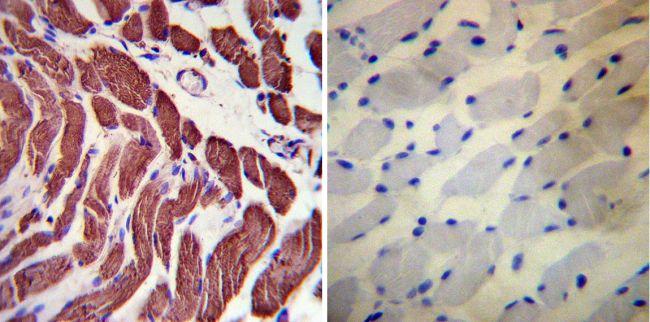 Actin Antibody (MA1-744) in Immunohistochemistry