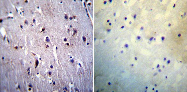 PSEN1 Antibody (MA1-751) in Immunohistochemistry