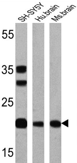 PSEN1 Antibody (MA1-751) in Western Blot