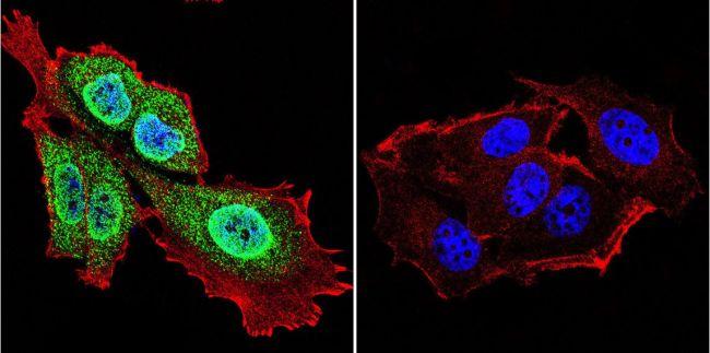 Presenilin 1 Antibody (MA1-752) in Immunofluorescence