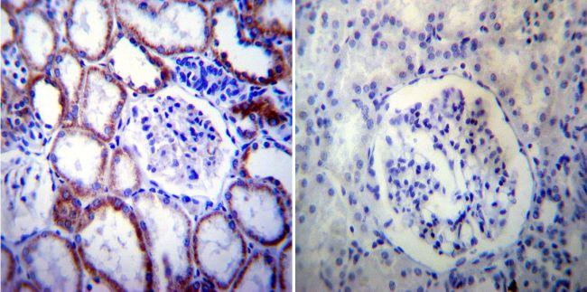 PSEN2 Antibody (MA1-753) in Immunohistochemistry