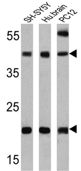 PSEN2 Antibody (MA1-753) in Western Blot