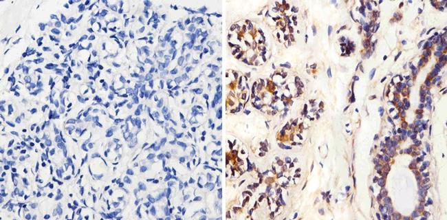 MMP2 Antibody (MA1-779) in Immunohistochemistry (Paraffin)