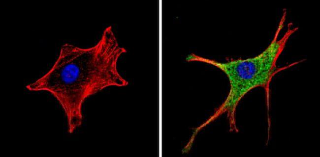 RARA Antibody (MA1-810A) in Immunofluorescence