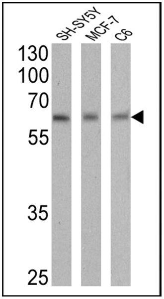 RARA Antibody (MA1-810A) in Western Blot