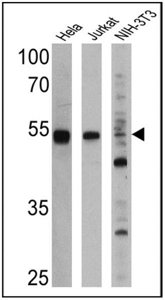 PPAR alpha Antibody (MA1-822) in Western Blot