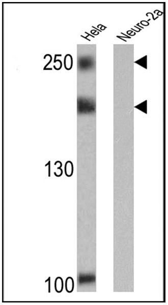 NCoR2 Antibody (MA1-843)