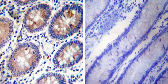 PLK1 Antibody (MA1-848) in Immunohistochemistry