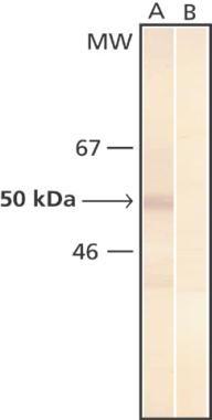 Phosphoserine Antibody (MA1-90649) in Western Blot