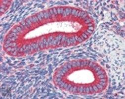 Calreticulin Antibody (MA1-91034) in Immunohistochemistry
