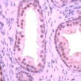 Streptococcus agalactiae Antibody (MA1-91193) in Immunohistochemistry