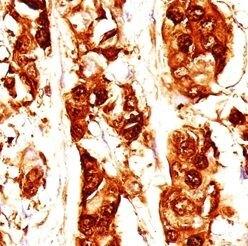 S100A7 Antibody (MA1-91555) in Immunohistochemistry (Paraffin)
