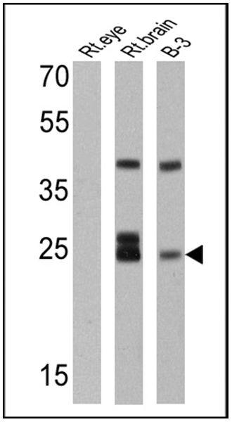 Recoverin Antibody (MA1-932) in Western Blot