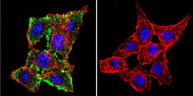 CFTR Antibody (MA1-935) in Immunofluorescence