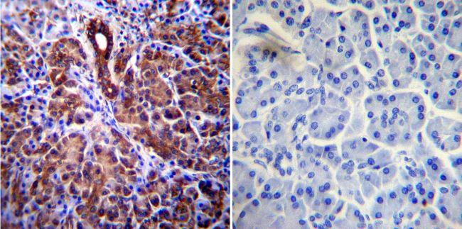 CFTR Antibody (MA1-935) in Immunohistochemistry