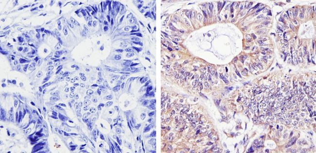 DIABLO Antibody (MA1-936) in Immunohistochemistry (Paraffin)