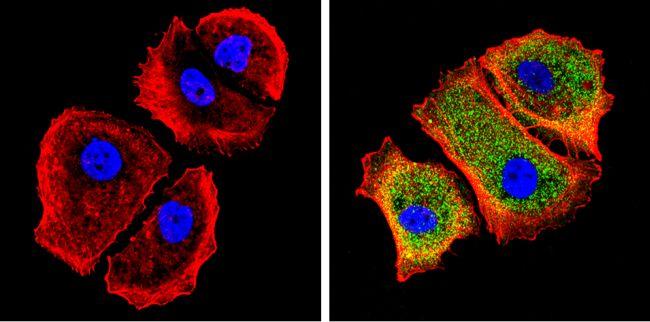 Galectin 3 Antibody (MA1-940) in Immunofluorescence