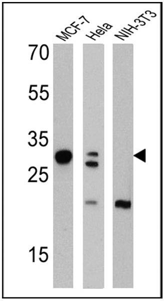 Galectin 3 Antibody (MA1-940) in Western Blot