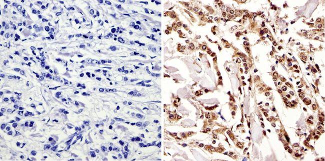 c-Myc Tag Antibody (MA1-980-1MG) in Immunohistochemistry
