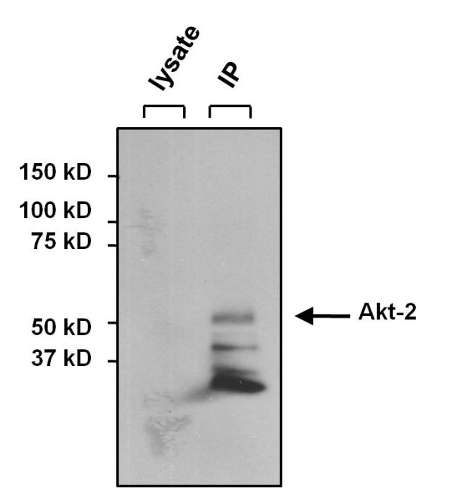 AKT2 Antibody (MA1-034X) in Immunoprecipitation