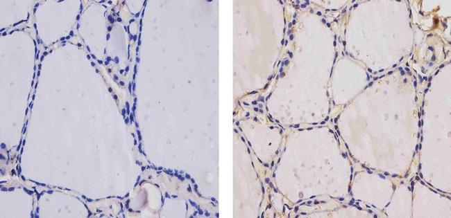 THRA/THRB Antibody (MA1-215) in Immunohistochemistry (Paraffin)