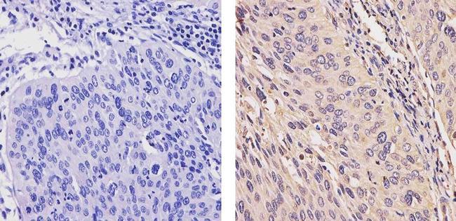 ErbB4 Monoclonal Antibody (HFR1)