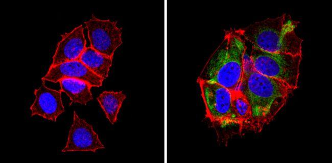 BAP31 Antibody (MA3-002) in Immunofluorescence