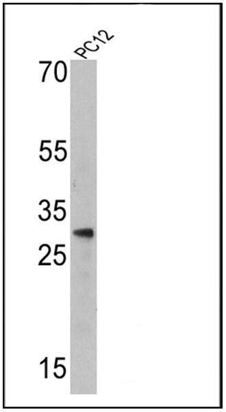 Endothelin 1 Monoclonal Antibody (TR.ET.48.5)